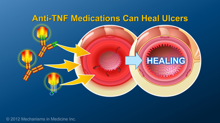 IBD Anti-TNF Medications