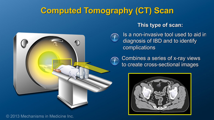 Computer Tomography (CT) Scan