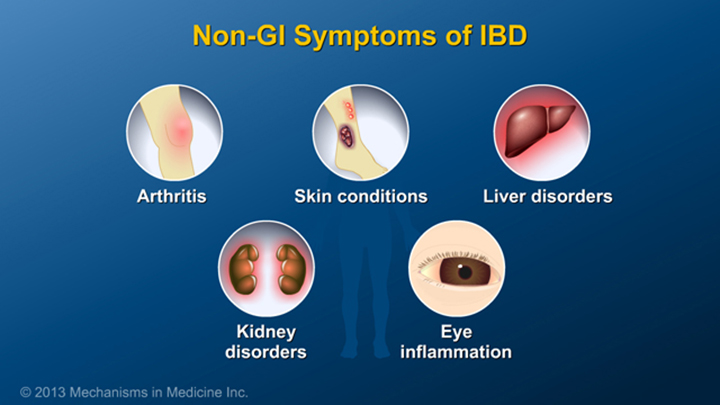 GI Symptoms of IBD