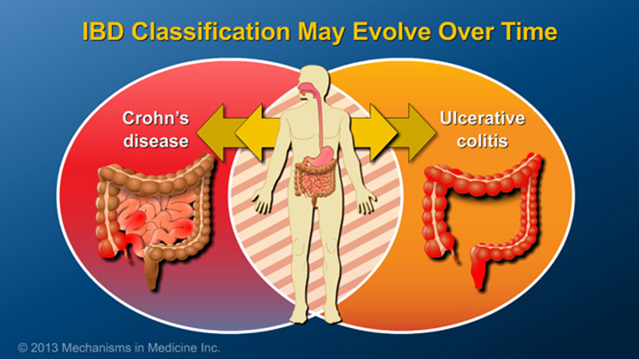 IBD Classification may Evolve Over Time