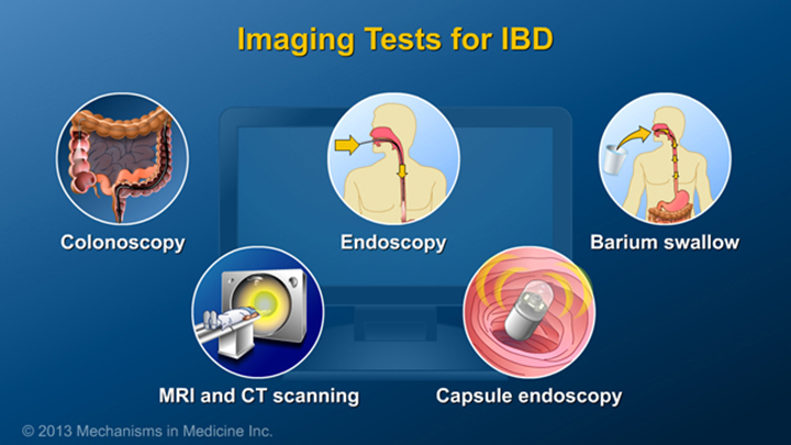 Imaging Tests for IBD