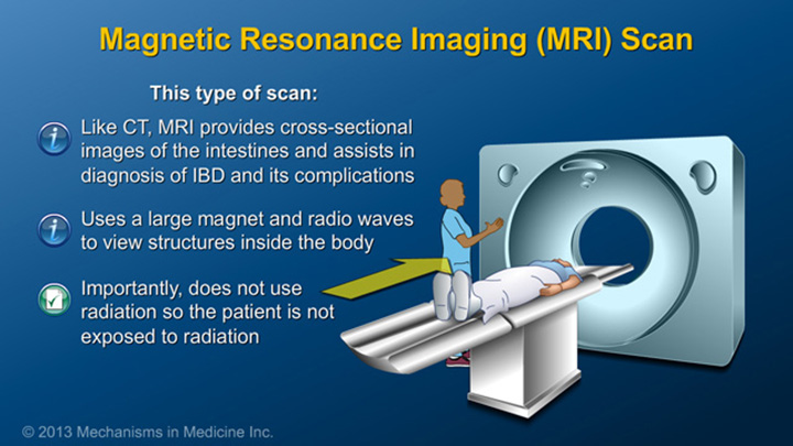 Magnetic Resonanse Imaging (MRI) Scan