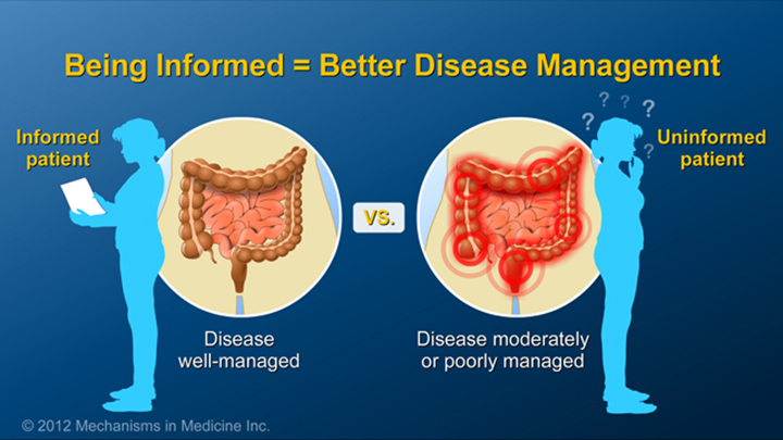 Informed Patients and IBD