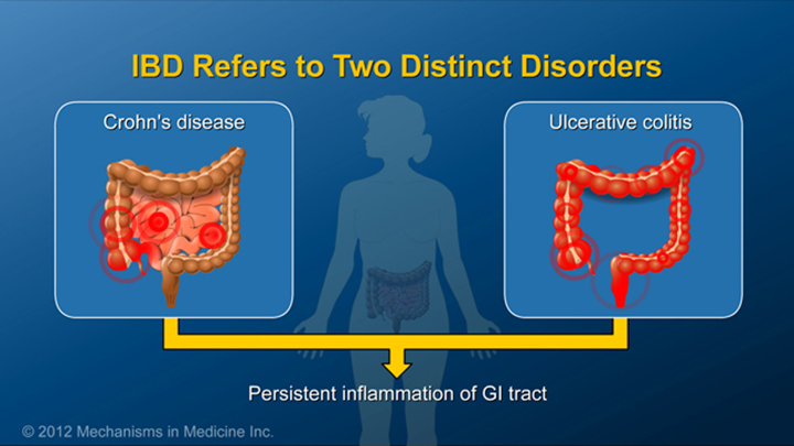 Two Disorders of IBD