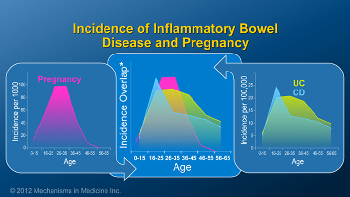 Incidence of IBD and Pregnancy