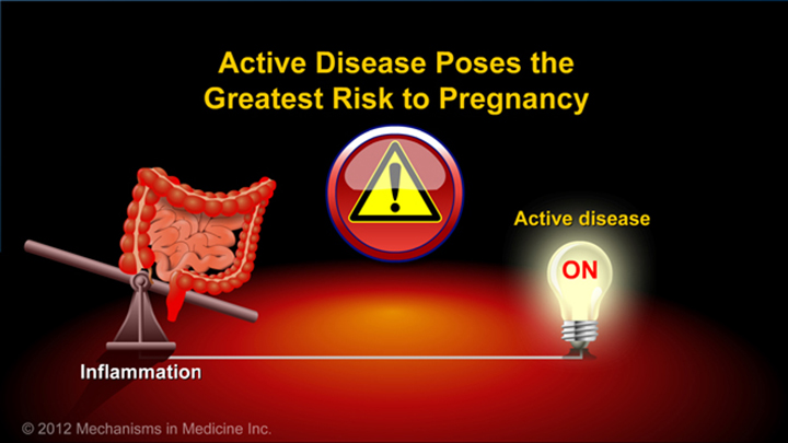 Risk to Pregnancy and IBD