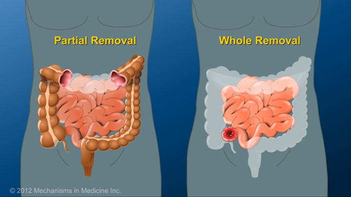 Partial or Complete Bowel Removal and IBD