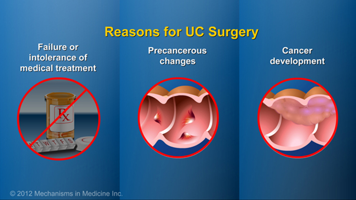Reasons for Ulcerative Colitis Surgery
