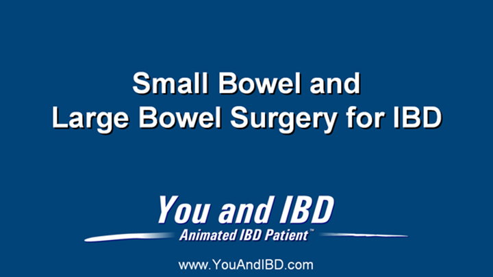 Small and Large Bowel Surgery for IBD