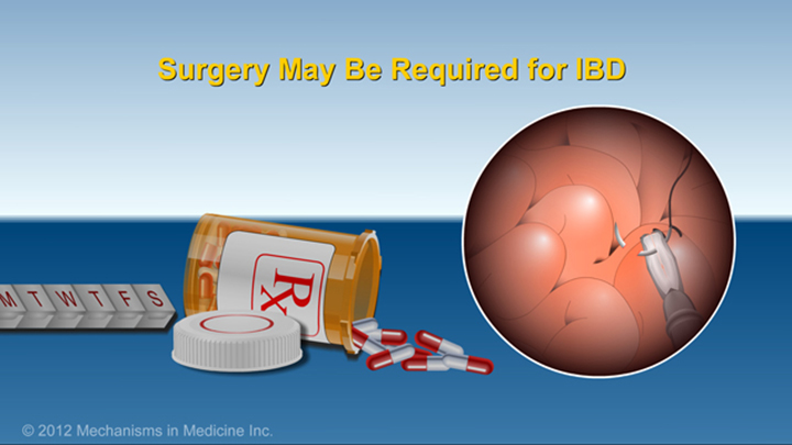 Surgery may be required for IBD
