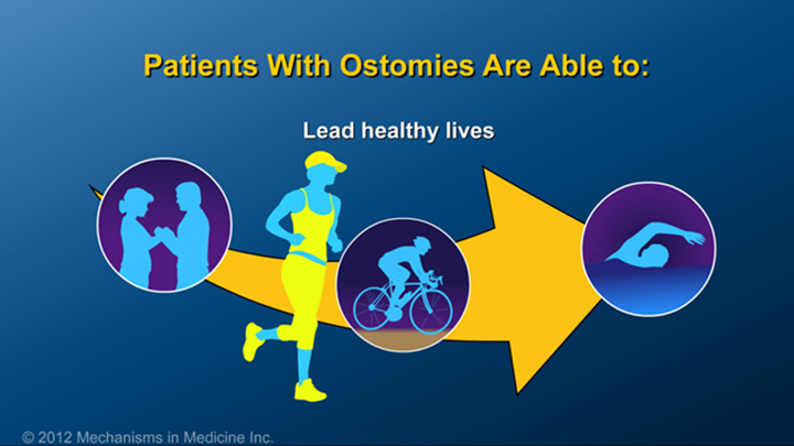 IBD Patients with Ostomies