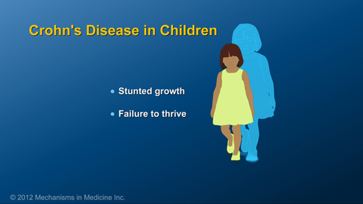Children with Crohn's