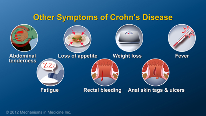 Other Symptoms of Crohn's