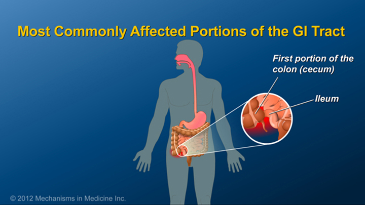 Portions of GI Tract and Crohn's