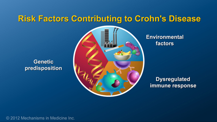 Risk Factors and Crohn's