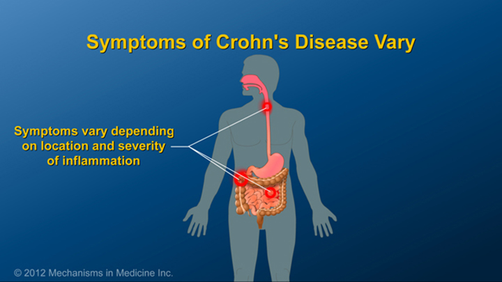 Symptoms of Crohn's