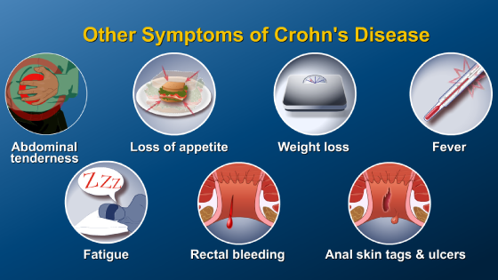 Slide Show - What is Crohn's Disease?