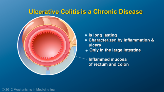 Slide Show - What is Ulcerative Colitis?